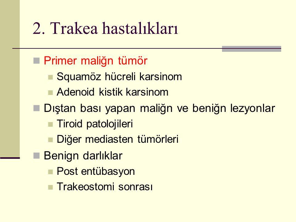 2. Trakea hastalıkları Primer maliğn tümör