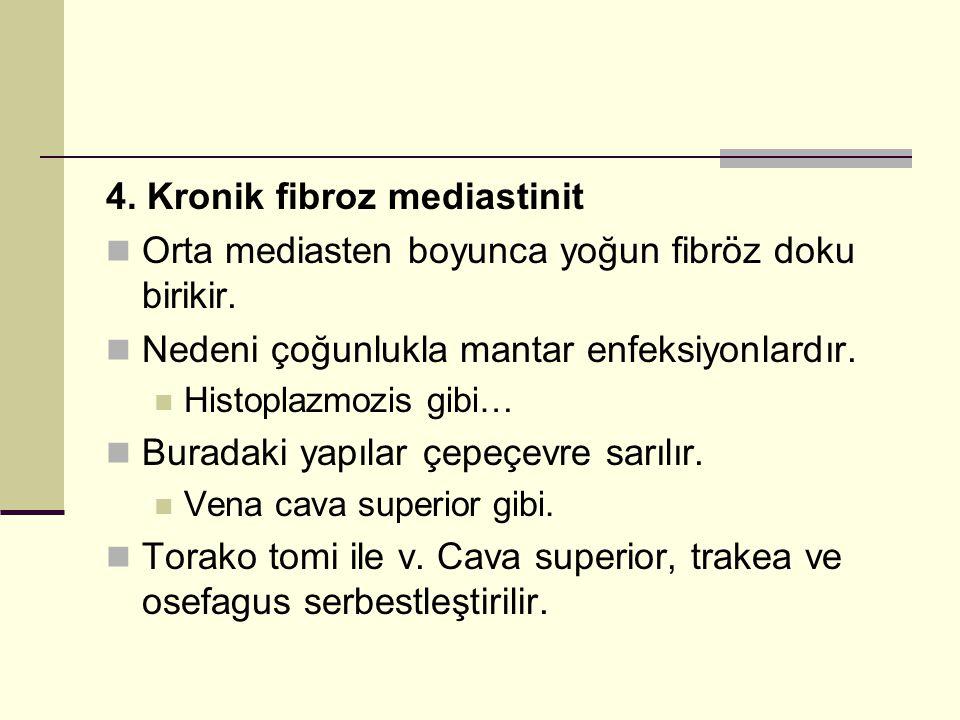 4. Kronik fibroz mediastinit