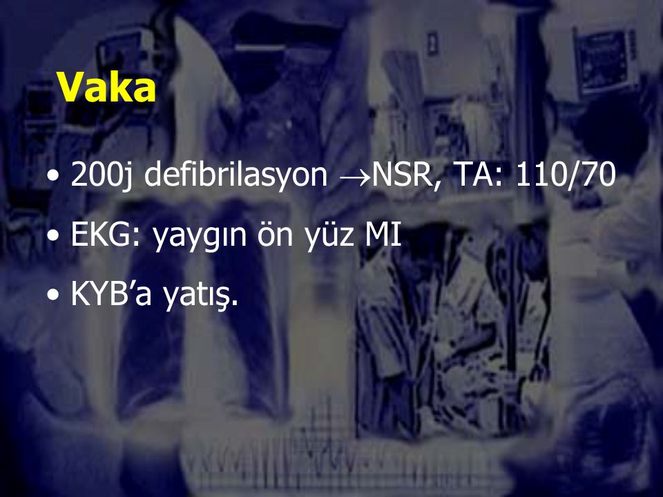 Vaka 200j defibrilasyon NSR, TA: 110/70 EKG: yaygın ön yüz MI