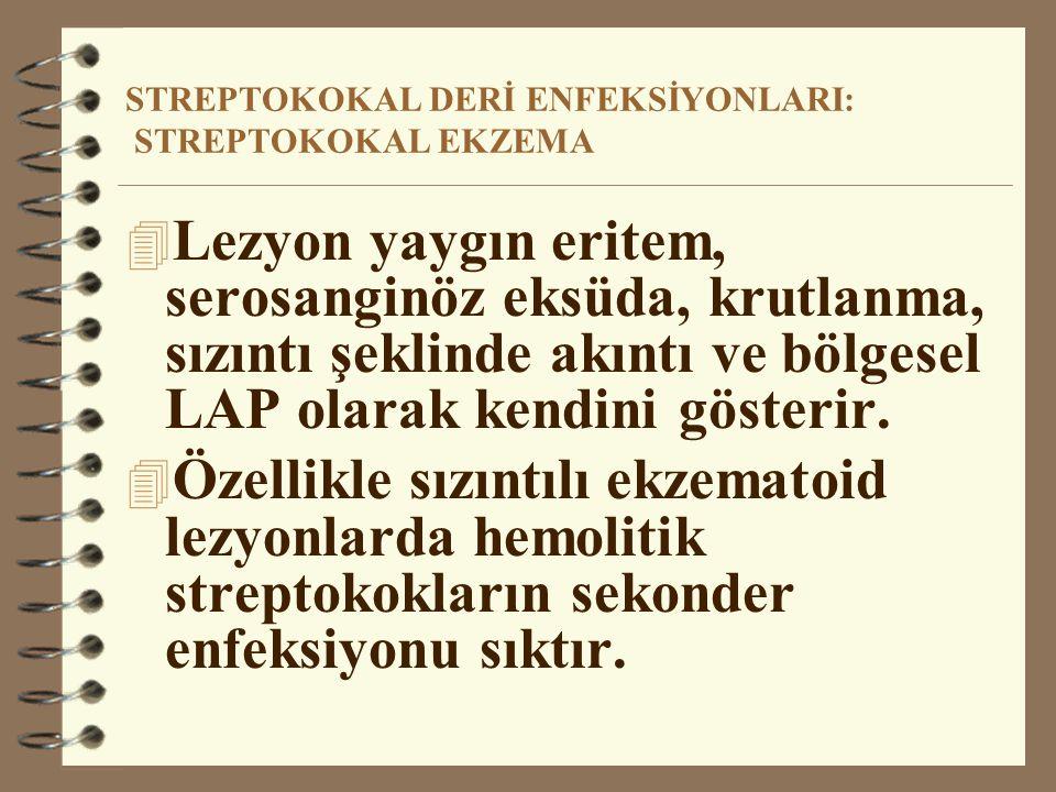 STREPTOKOKAL DERİ ENFEKSİYONLARI: STREPTOKOKAL EKZEMA