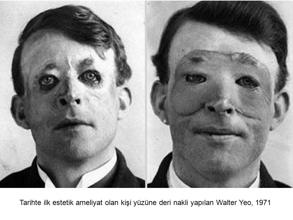 Tarihte ilk estetik ameliyat olan kişi yüzüne deri nakli yapılan Walter Yeo, 1971