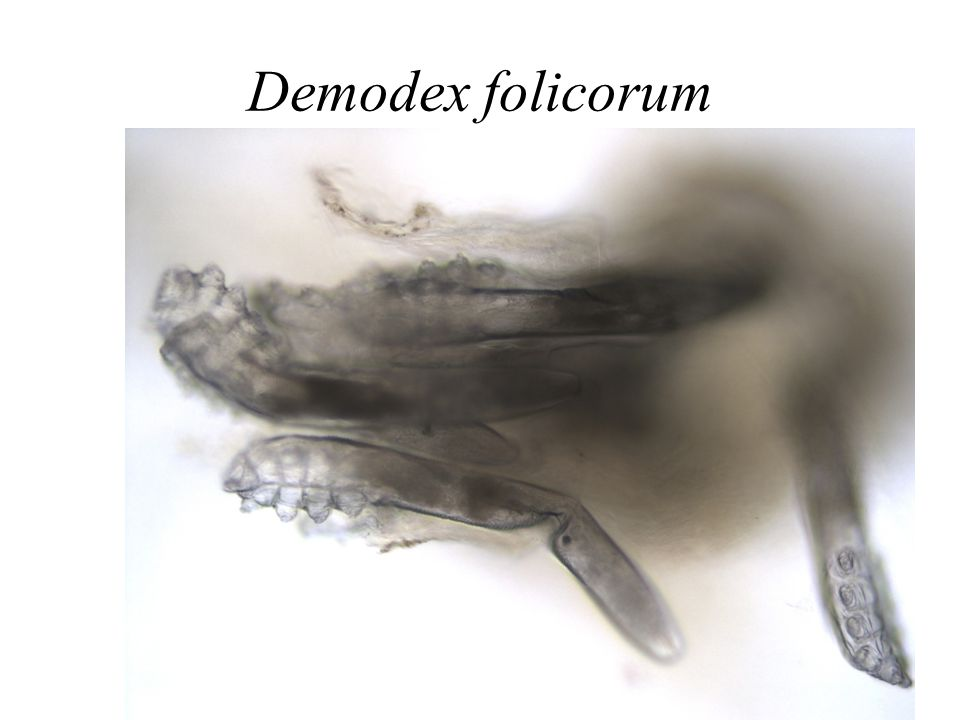 Demodex folicorum