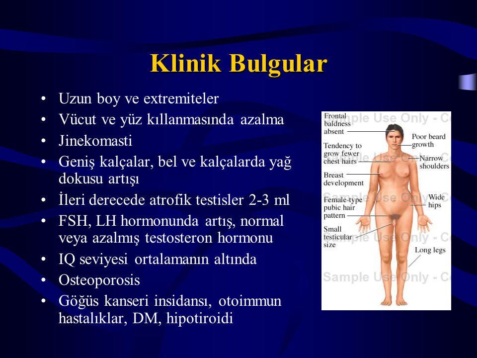 Klinik Bulgular Uzun boy ve extremiteler