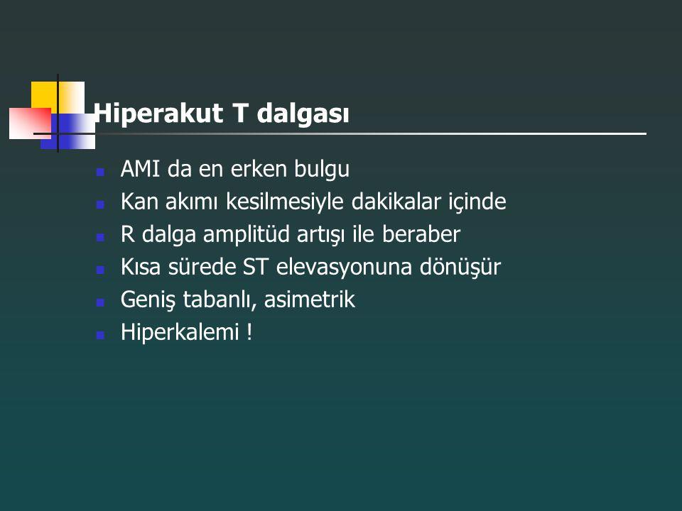 Hiperakut T dalgası AMI da en erken bulgu