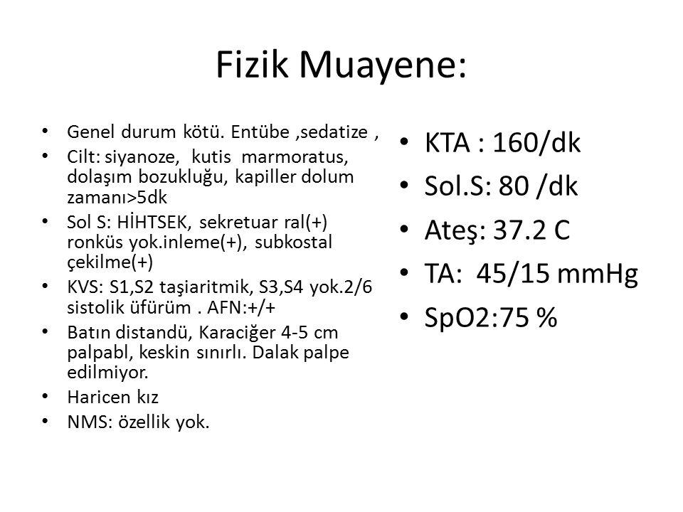 Fizik Muayene: KTA : 160/dk Sol.S: 80 /dk Ateş: 37.2 C TA: 45/15 mmHg