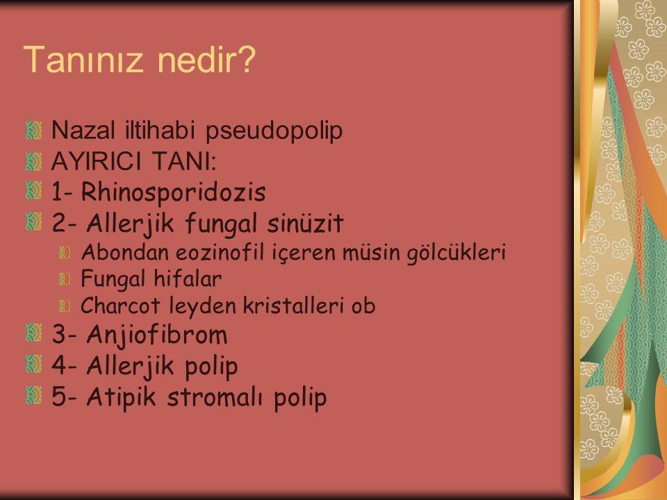 Tanınız nedir Nazal iltihabi pseudopolip AYIRICI TANI: