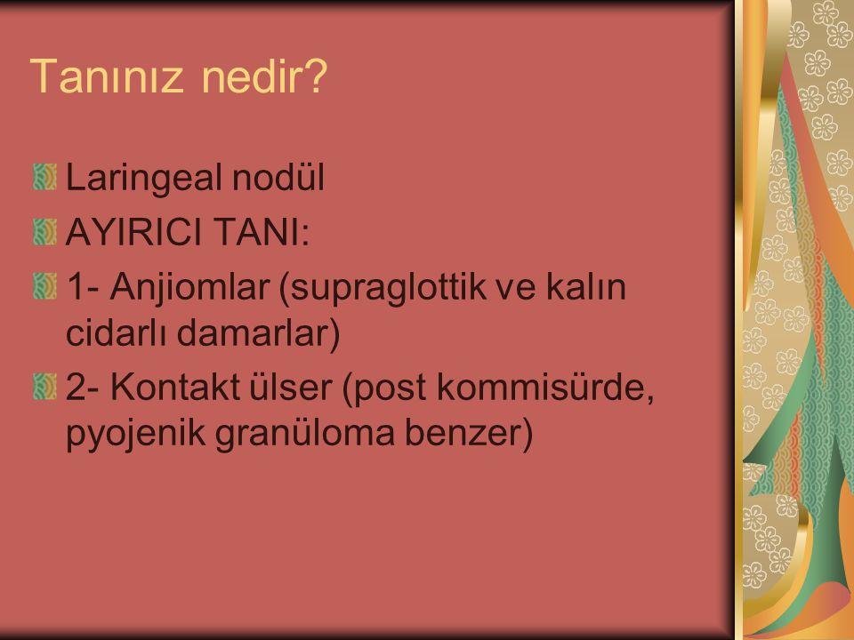 Tanınız nedir Laringeal nodül AYIRICI TANI: