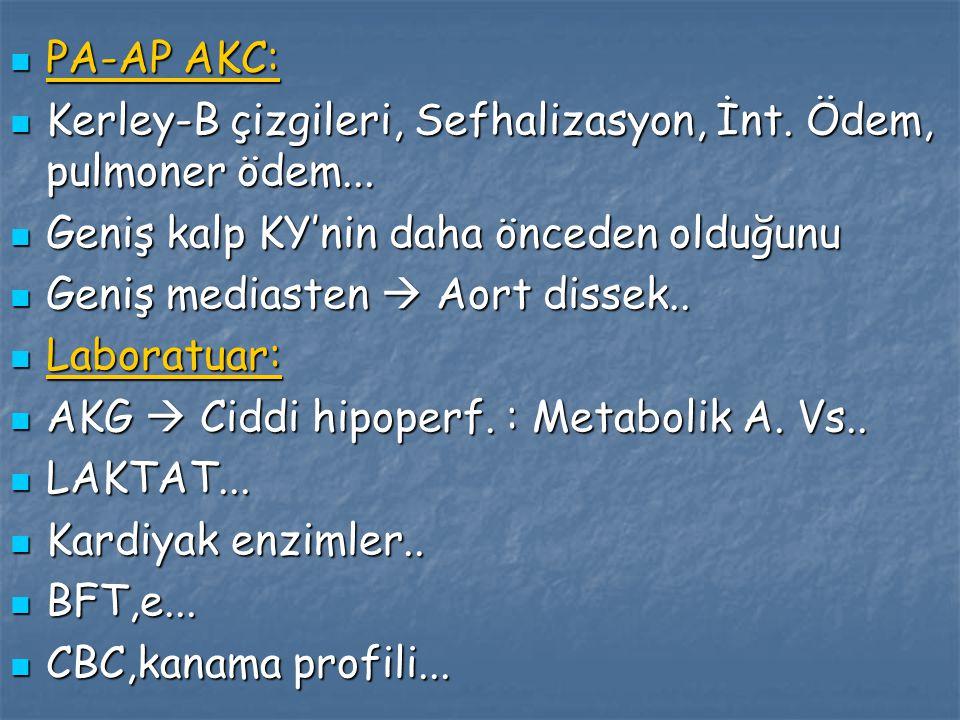 PA-AP AKC: Kerley-B çizgileri, Sefhalizasyon, İnt. Ödem, pulmoner ödem... Geniş kalp KY'nin daha önceden olduğunu.
