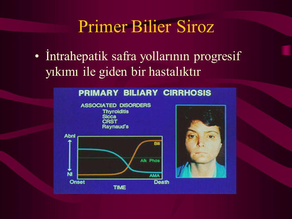 Primer Bilier Siroz İntrahepatik safra yollarının progresif yıkımı ile giden bir hastalıktır