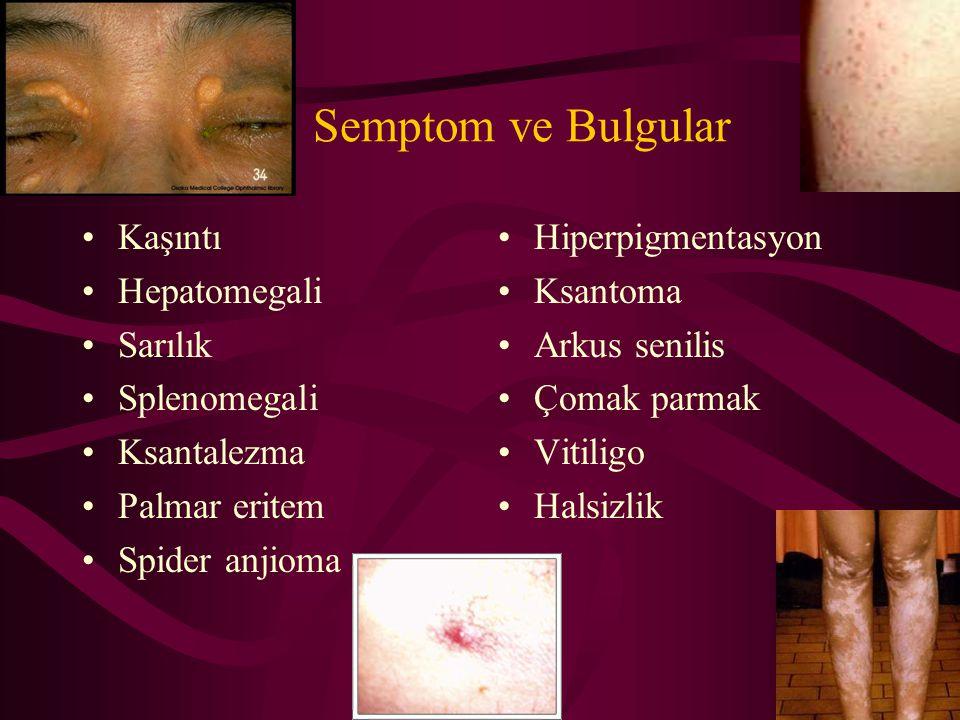 Semptom ve Bulgular Kaşıntı Hepatomegali Sarılık Splenomegali