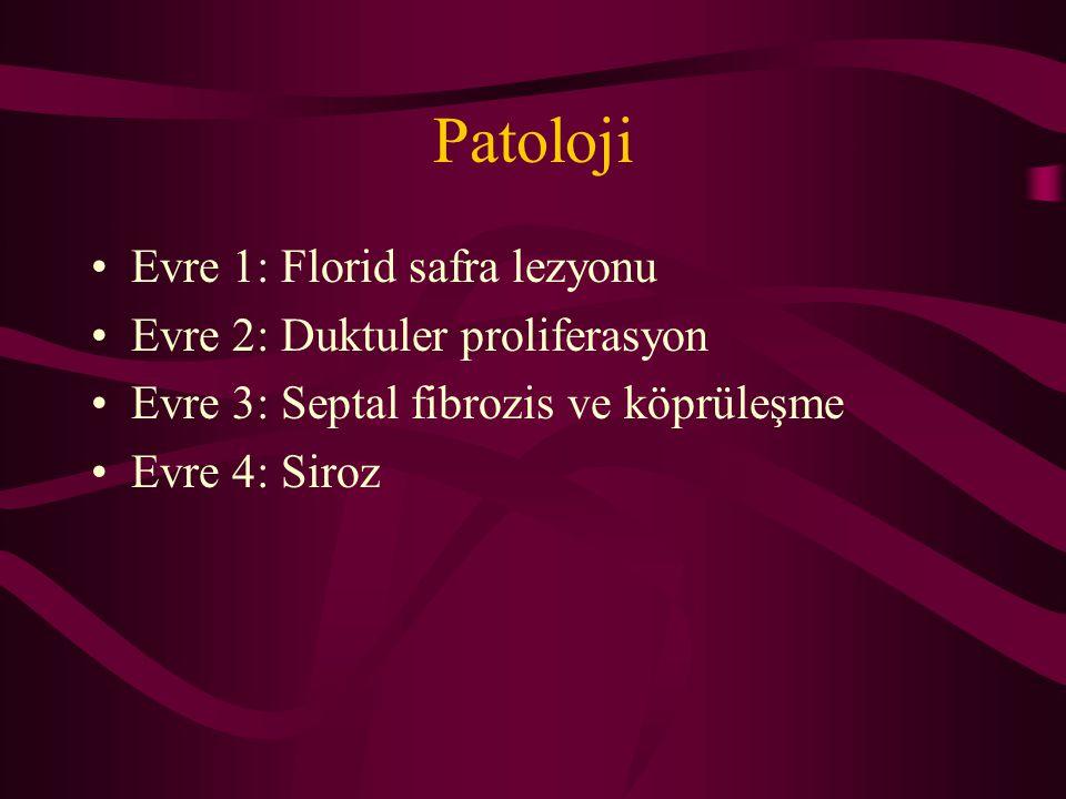 Patoloji Evre 1: Florid safra lezyonu Evre 2: Duktuler proliferasyon