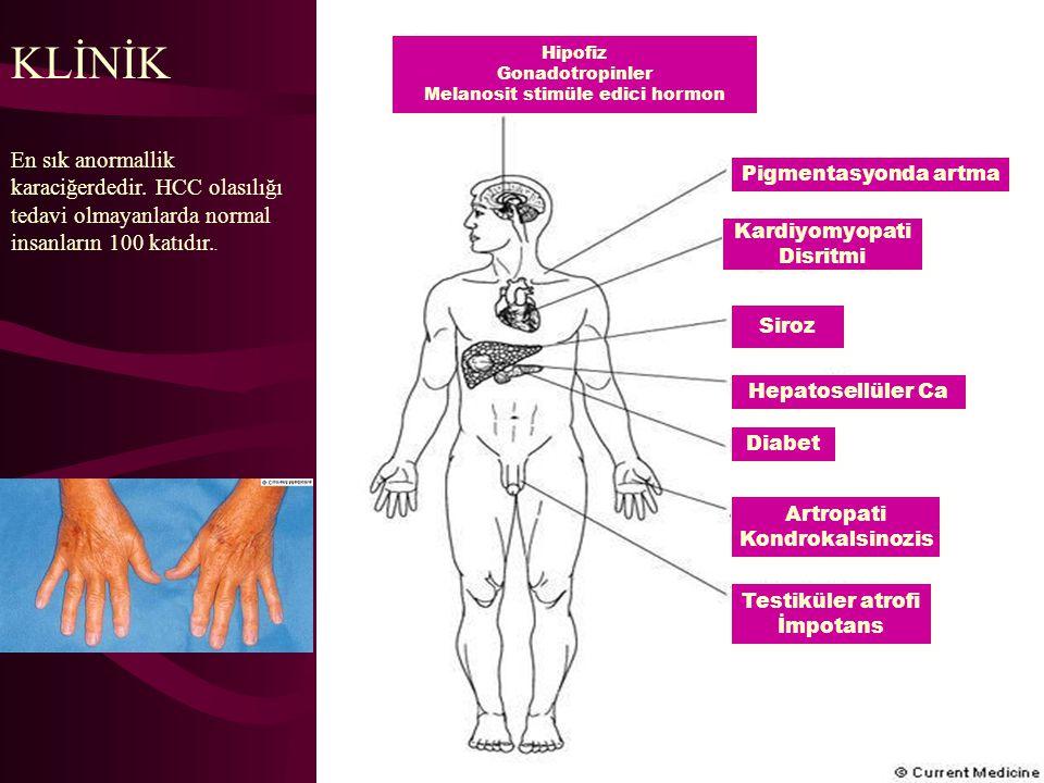 Melanosit stimüle edici hormon