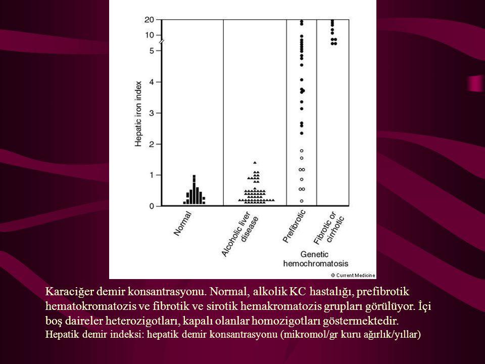 Karaciğer demir konsantrasyonu