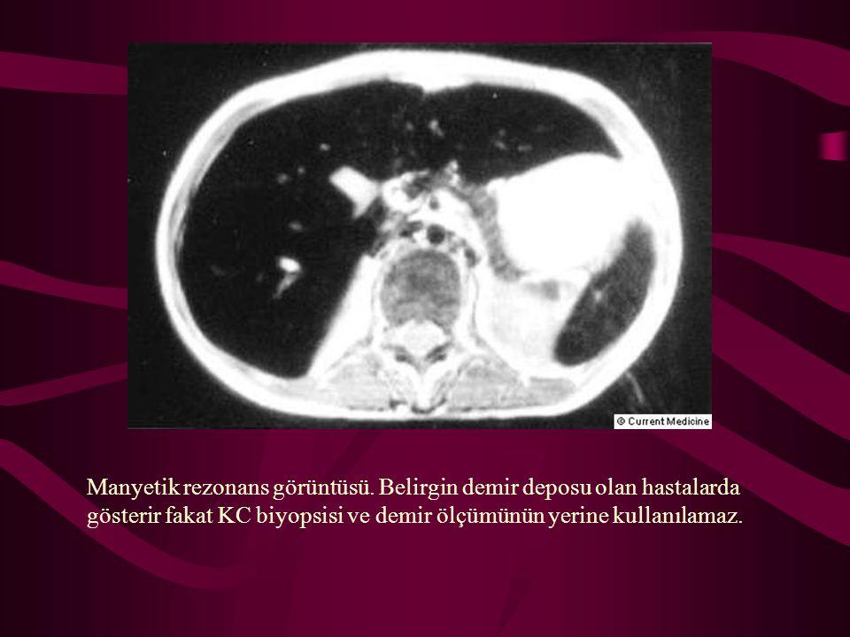 Manyetik rezonans görüntüsü