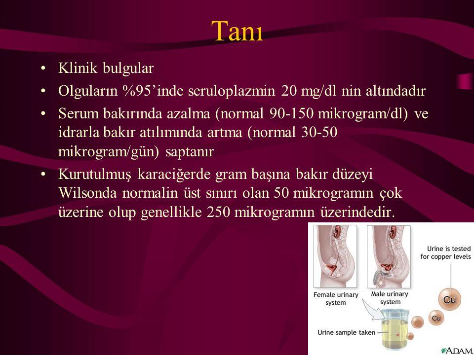Tanı Klinik bulgular. Olguların %95'inde seruloplazmin 20 mg/dl nin altındadır.
