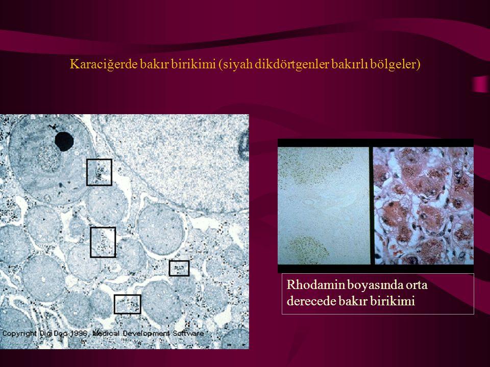 Karaciğerde bakır birikimi (siyah dikdörtgenler bakırlı bölgeler)