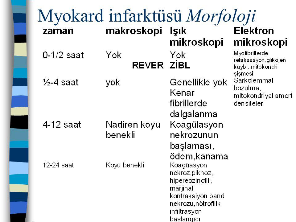 Myokard infarktüsü Morfoloji