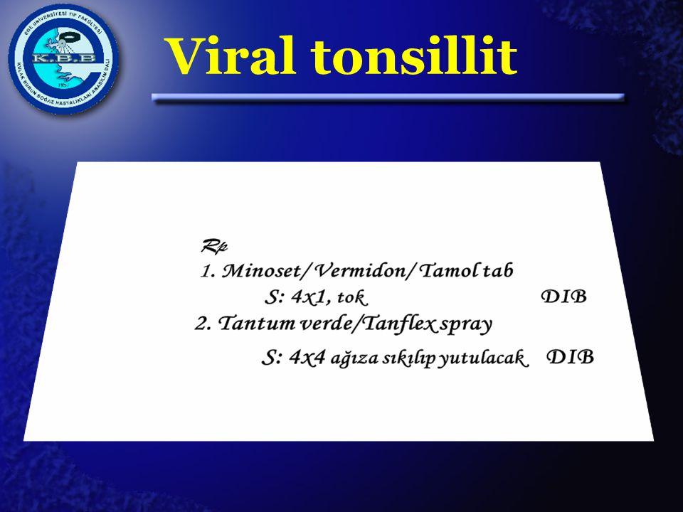 Viral tonsillit
