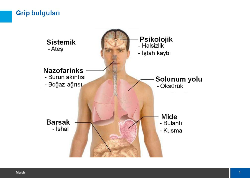İnfluenza A virüsü H3N2 Mevsimsel grip, H5N1 Kuş gribi, H1N1 Pandemik grip (Domuz gribi),