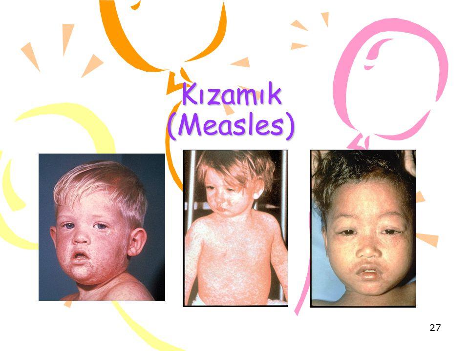 Kızamık (Measles)