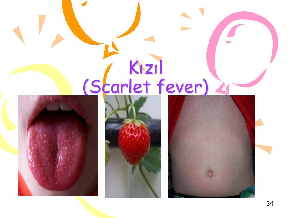 Kızıl (Scarlet fever)