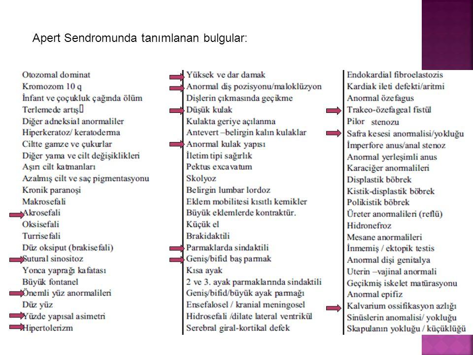 Apert Sendromunda tanımlanan bulgular: