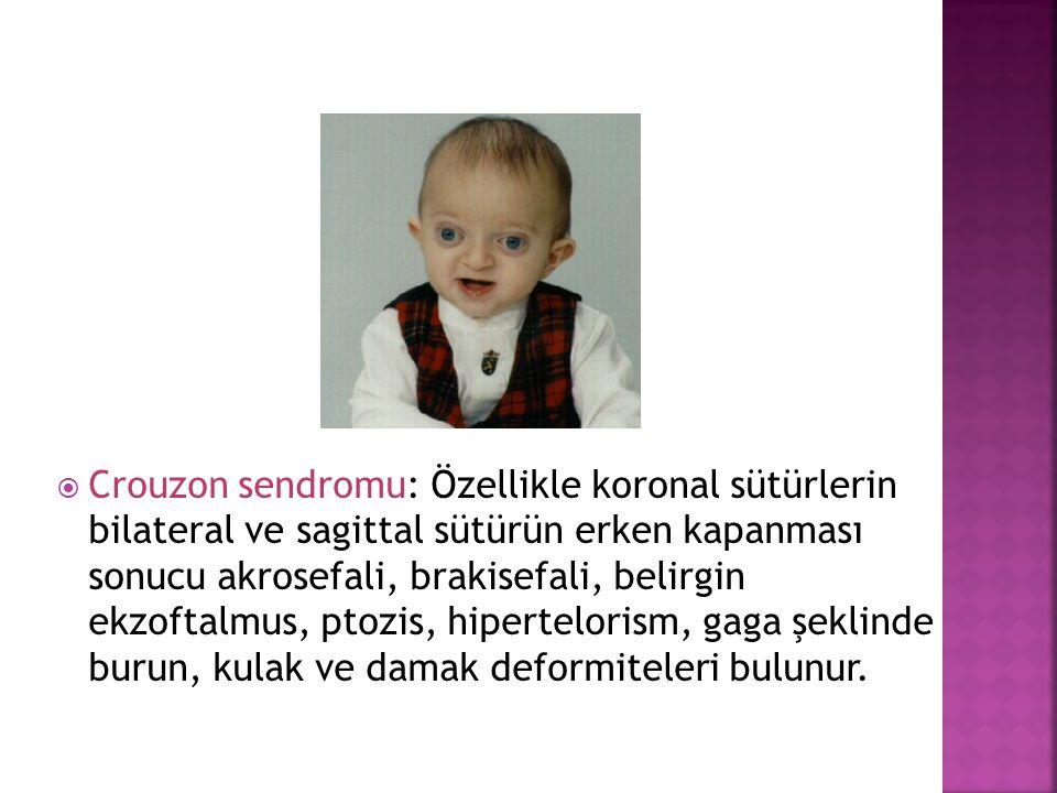 Crouzon sendromu: Özellikle koronal sütürlerin bilateral ve sagittal sütürün erken kapanması sonucu akrosefali, brakisefali, belirgin ekzoftalmus, ptozis, hipertelorism, gaga şeklinde burun, kulak ve damak deformiteleri bulunur.