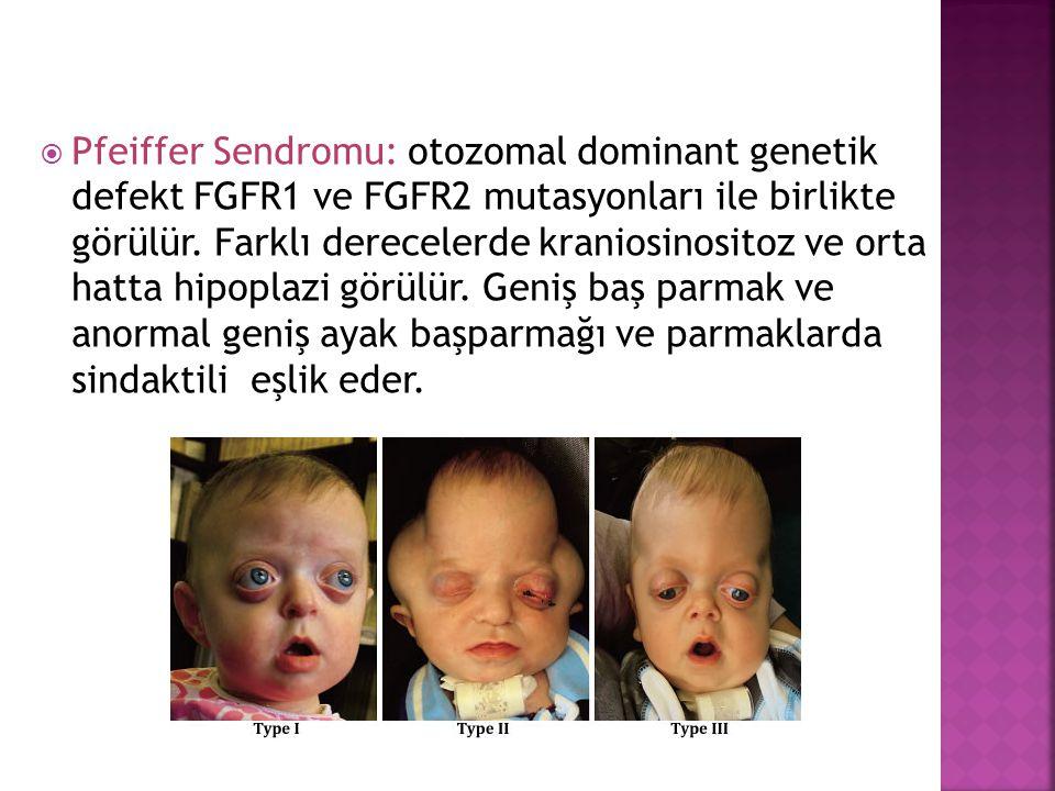 Pfeiffer Sendromu: otozomal dominant genetik defekt FGFR1 ve FGFR2 mutasyonları ile birlikte görülür.