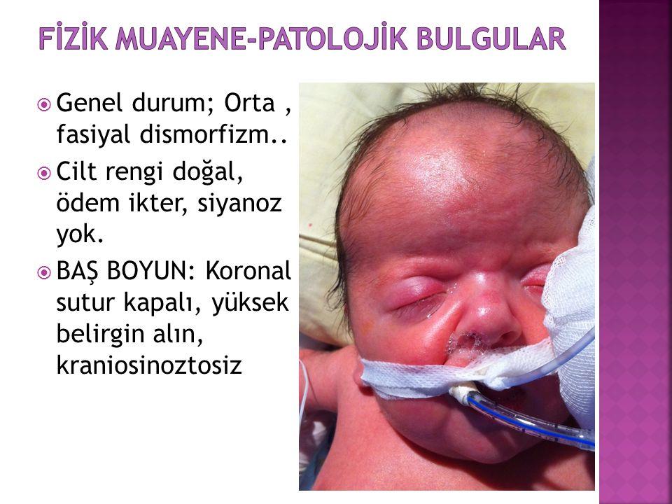 Fİzİk Muayene-Patolojİk Bulgular