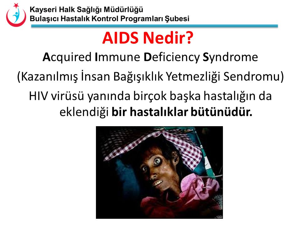 AIDS Nedir Acquired Immune Deficiency Syndrome