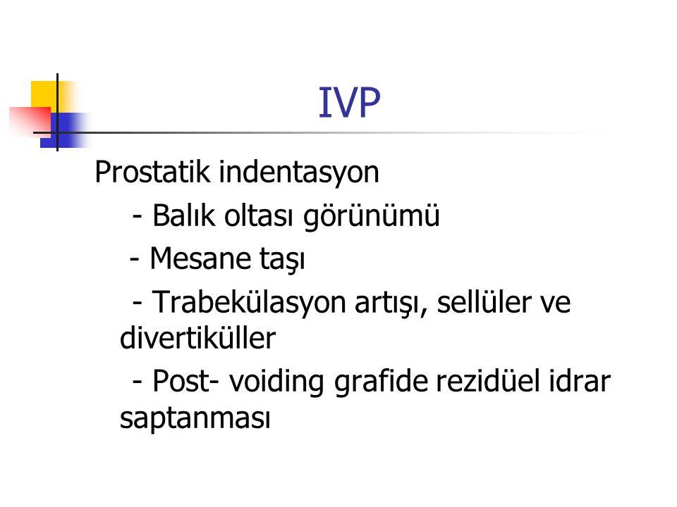 IVP Prostatik indentasyon - Balık oltası görünümü - Mesane taşı