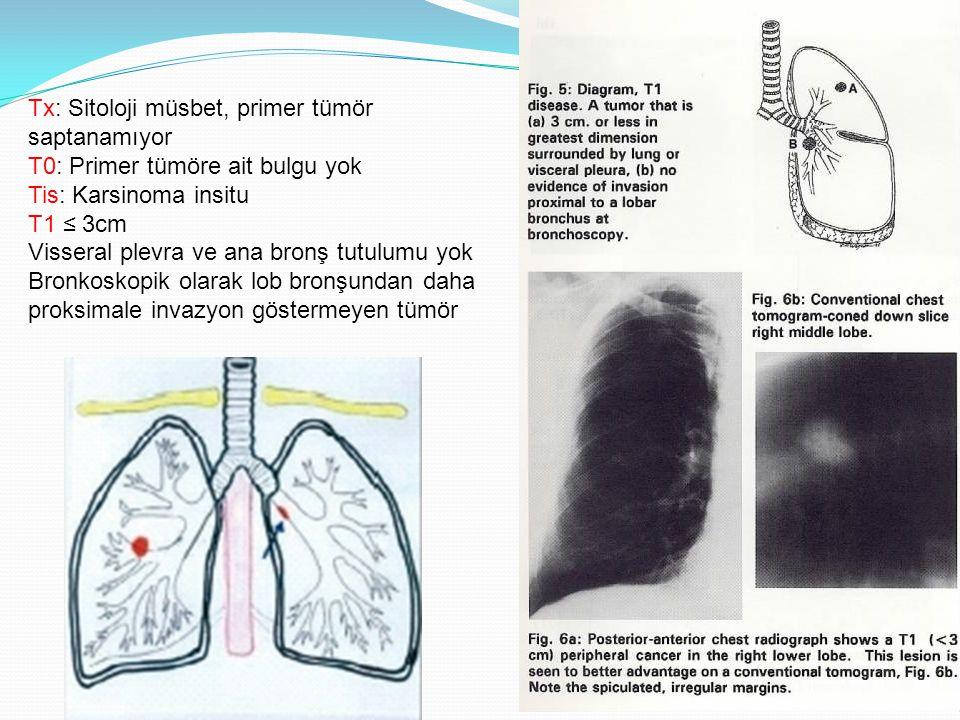 Tx: Sitoloji müsbet, primer tümör saptanamıyor