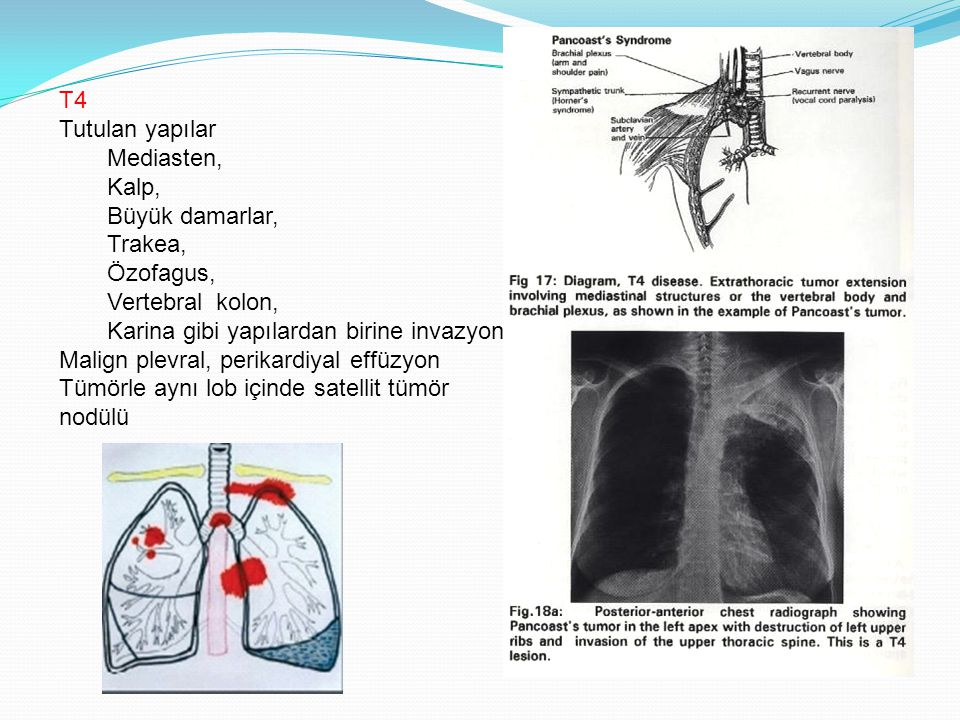 T4 Tutulan yapılar. Mediasten, Kalp, Büyük damarlar, Trakea, Özofagus, Vertebral kolon, Karina gibi yapılardan birine invazyon.