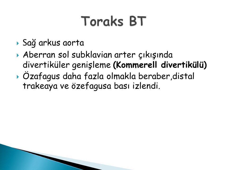 Toraks BT Sağ arkus aorta