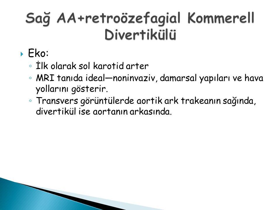 Sağ AA+retroözefagial Kommerell Divertikülü