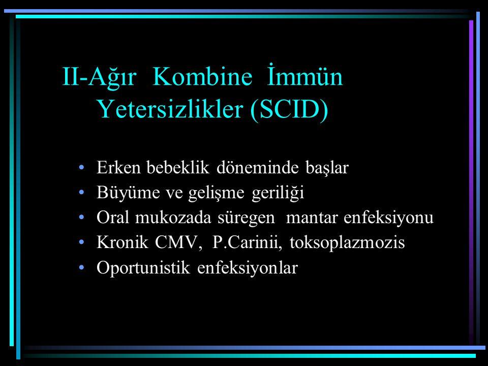 II-Ağır Kombine İmmün Yetersizlikler (SCID)