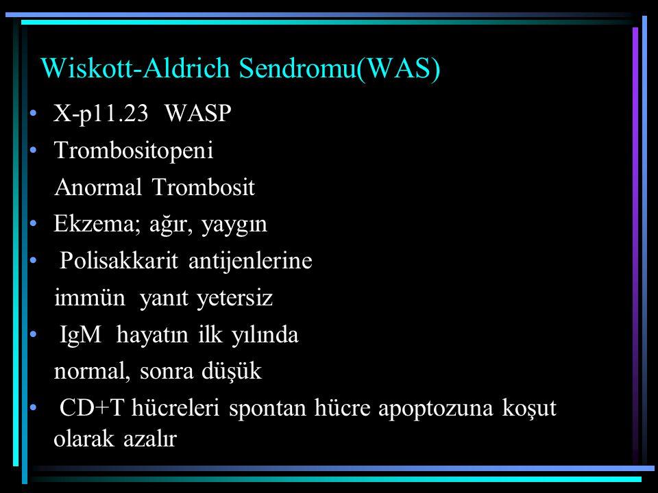 Wiskott-Aldrich Sendromu(WAS)