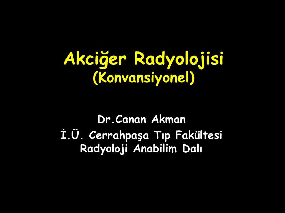 Akciğer Radyolojisi (Konvansiyonel)