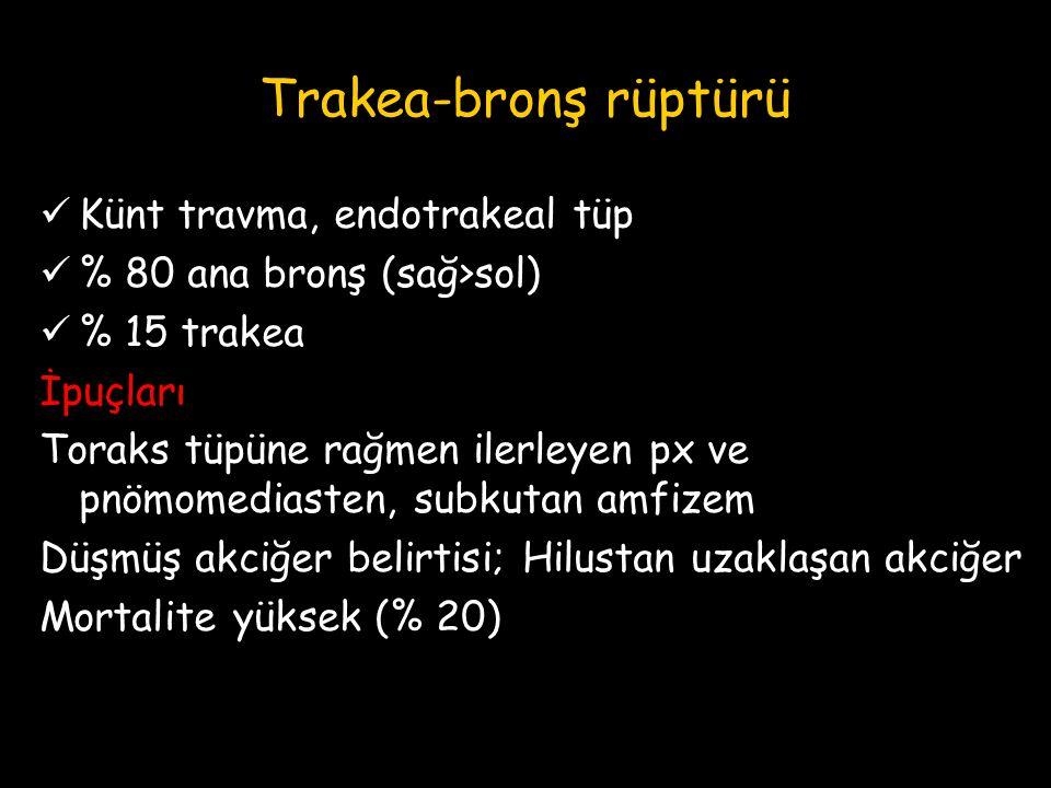 Trakea-bronş rüptürü Künt travma, endotrakeal tüp