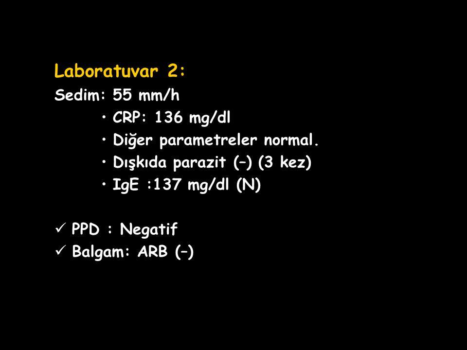 OLGU SUNUMU Laboratuvar 2: Sedim: 55 mm/h CRP: 136 mg/dl