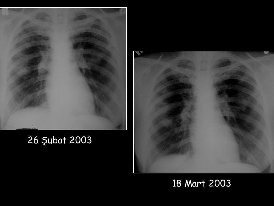 26 Şubat 2003 18 Mart 2003 26/2//2003