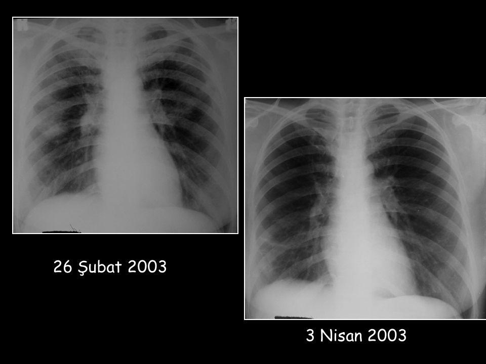 26 Şubat 2003 3 Nisan 2003