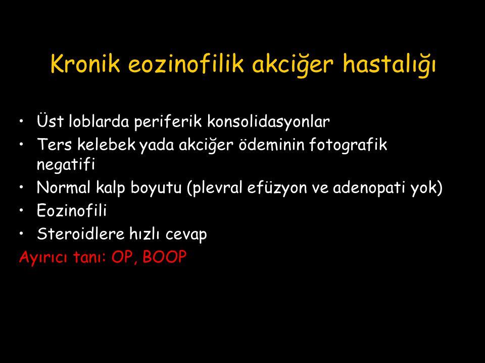 Kronik eozinofilik akciğer hastalığı