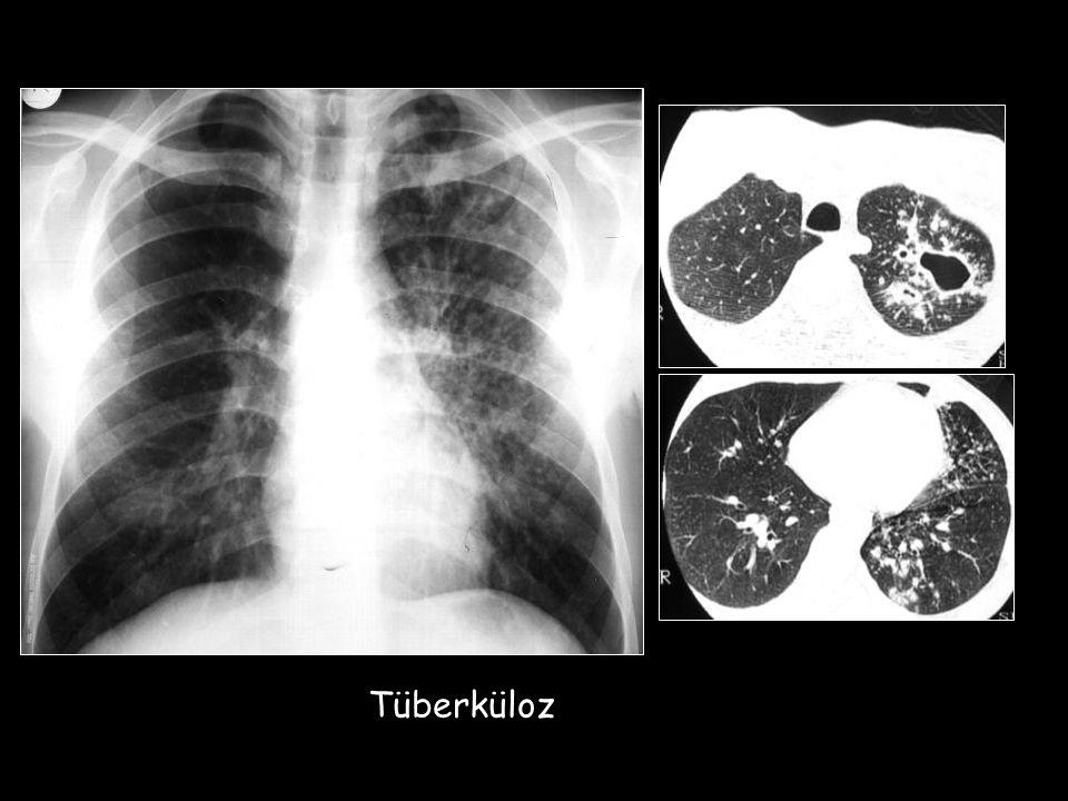 tbc Tüberküloz