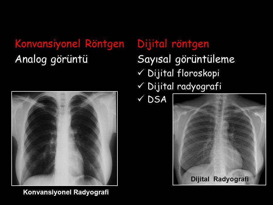 Konvansiyonel Röntgen Analog görüntü Dijital röntgen