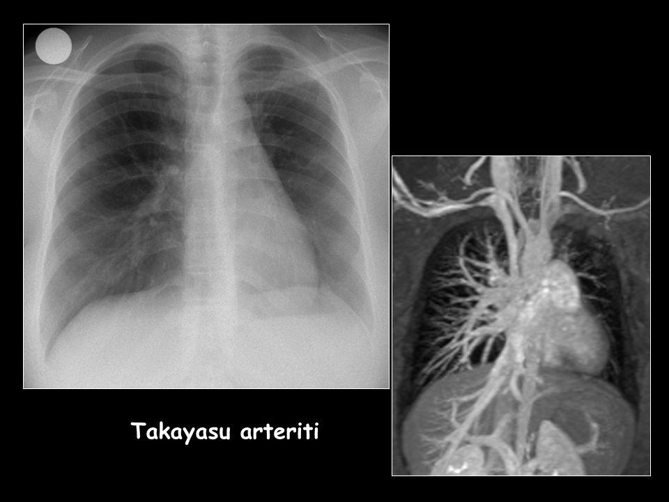 Takayasu arteriti Takayasu arteriti