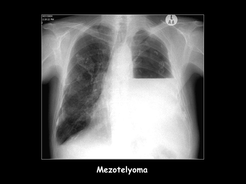 MEZOTELYOMA Mezotelyoma