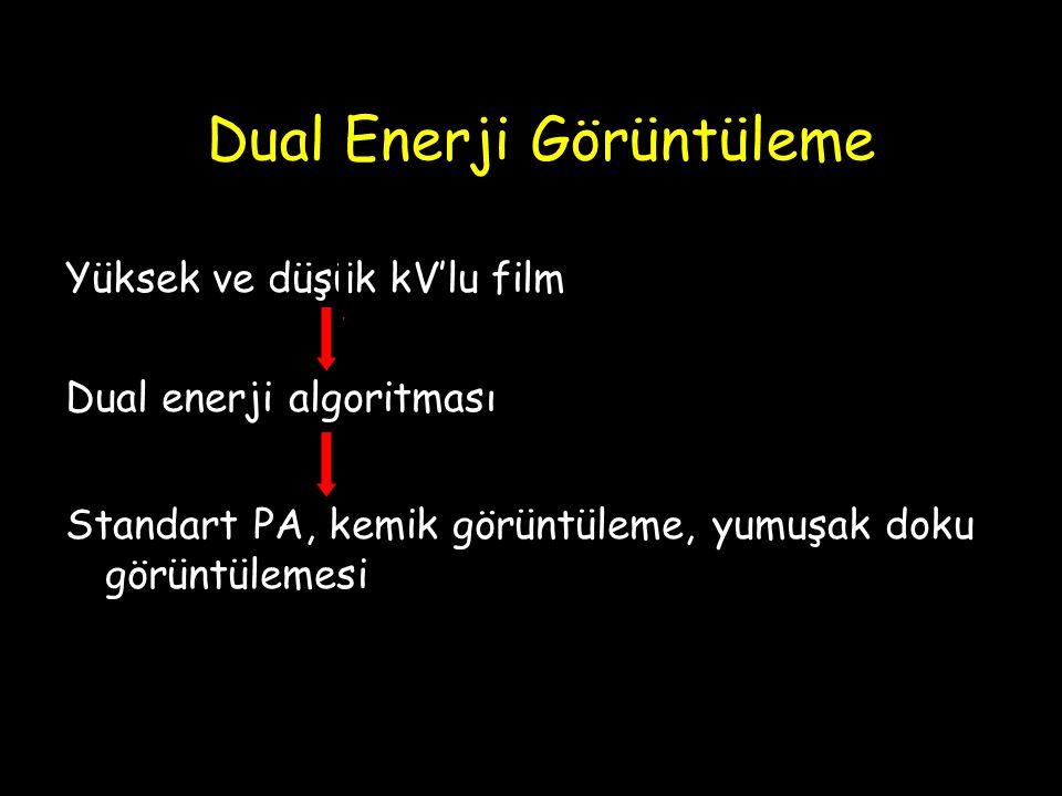 Dual Enerji Görüntüleme