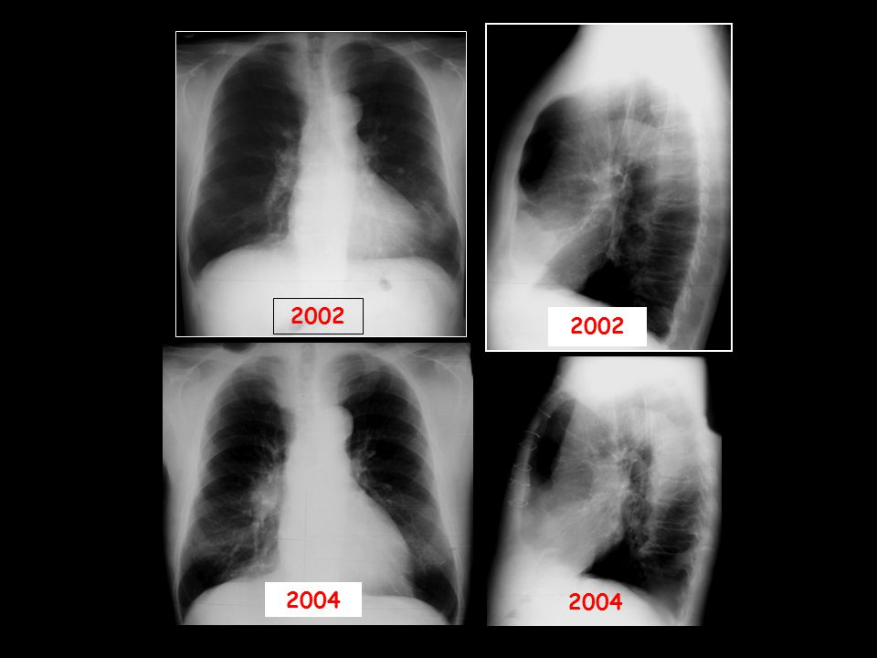2002 2002 2004 2004 Sağ Santral Kitle