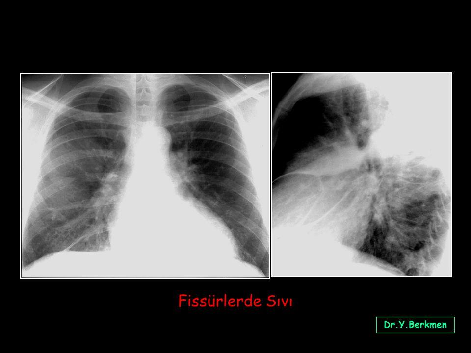 Fissürlerde Sıvı Dr.Y.Berkmen